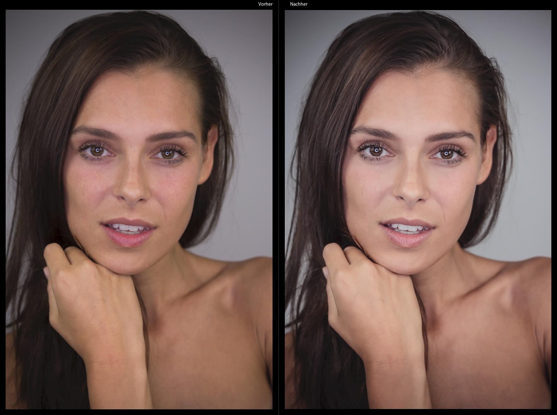 MS-beauty_Goldhaut-Vergleich